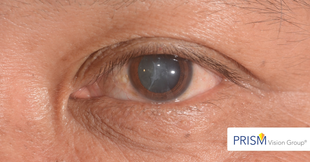 Cataracts Don't Return: Facts You Might Not Know